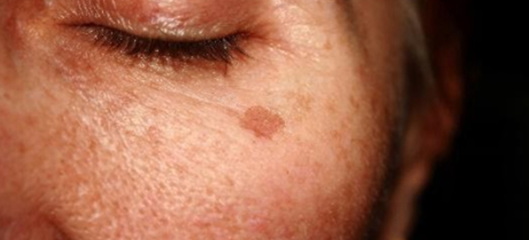 How to Treat Pigmentation