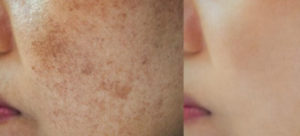Pigmentation-before-and-after-1080x490